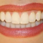 Great Smile Visit Dentist Regularly