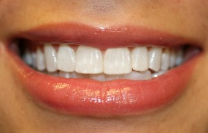 COSMETIC DENTISTS USE TOOTH COLORED COMPOSITE RESIN FILLINGS TO CREATE BEAUTIFUL SMILES