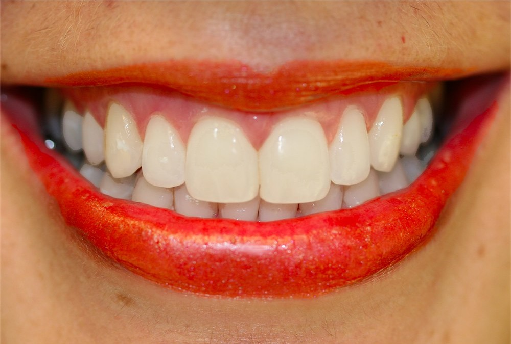 Cosmetic Dental Bonding is Used to Create Beautiful Smiles