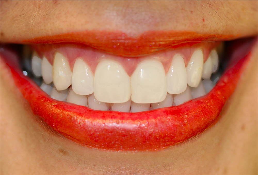 Diastama Closure with Cosmetic Bonding
