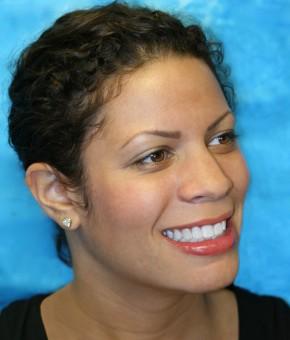 COSMETIC DENTAL BONDING FOR BEAUTIFUL SMILES