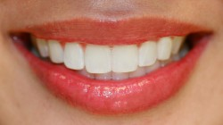 Tooth Whitening Problems Can Be Avoided