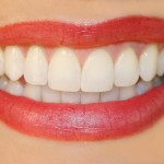 Dentistry Night Guards Protect Beautiful Smiles According to Bellevue Cosmetic Dentists