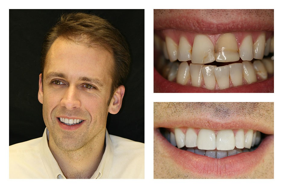 Man smiling with close up before and after of his teeth