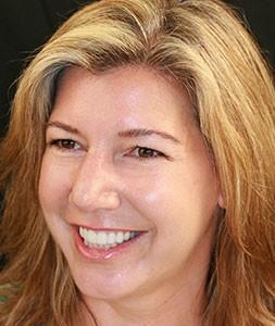 Ingrid Actual Patient of Brookside Dental