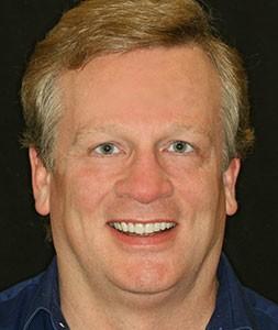 Mark Actual Patient of Brookside Dental