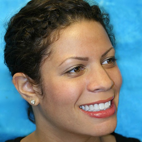 An actual patient of our Bellevue, WA Dentist shows off her new smile.