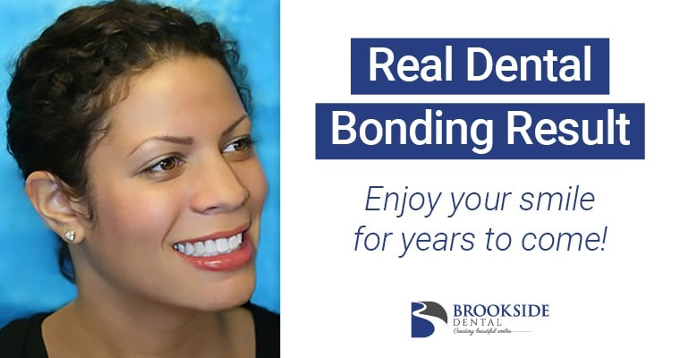 Real patient smiling showing dental bonding results at Brookside Dental in Bellevue, WA