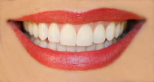 A Fabulous Smile Can be Obtained with soft tissue Laser