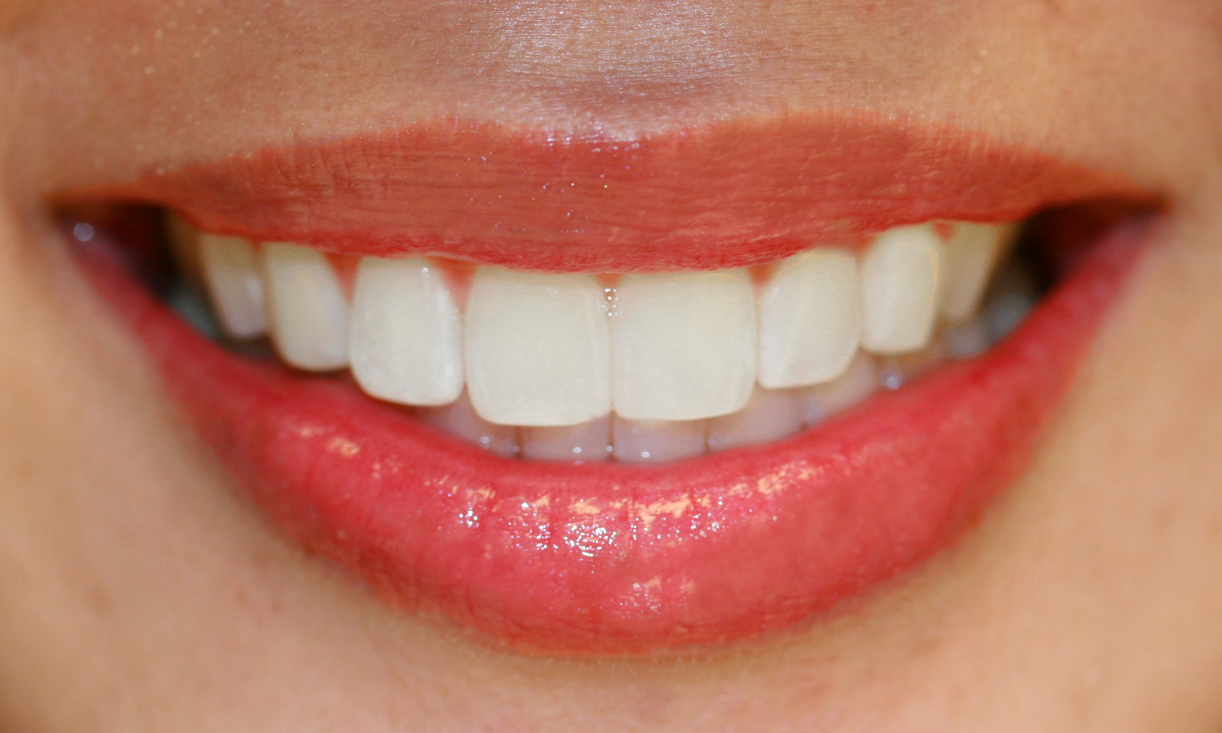 Tooth Whitening Proble...
